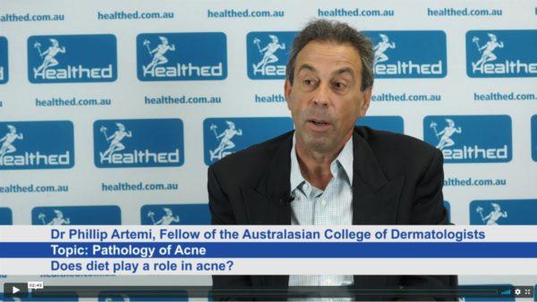 Pathology of Acne