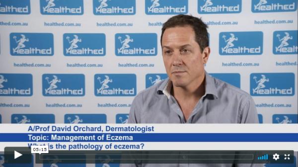 Management of Eczema