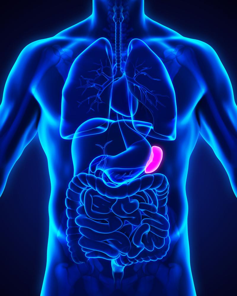 Infection Risk in Asplenia and Hyposplenism